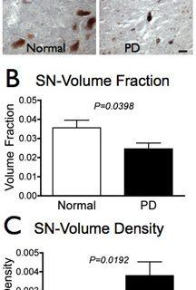 Sobre selênio, estresse oxidativo e mal de Parkinson